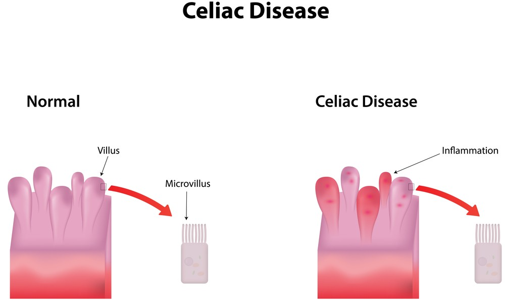 "Celiac disease goes beyond the gut: ""Gluten sensitivity can be primarily and at times, exclusively a neurological disease."" Via: joshya 