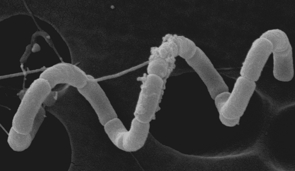 Image: Spirulina (electron micrograph). Via: FWC Fish and Wildlife Research Institute | Flickr | Licensed under Creative Commons 2.0.