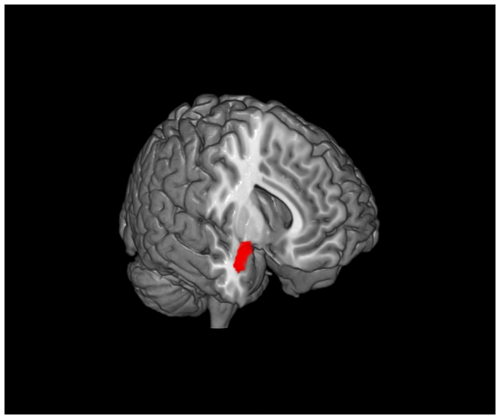 Mindfulness practice has been linked to a decrease in amygdala size. Via: PLOS ONE.