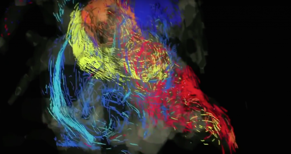 This 3D scan of a patient's heart is a work of art.